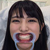 [Teeth fetishism] I observed Kuraki Shiori-chan's teeth!