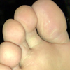 It's odorless but it's internal bleeding and dirty with dirt [foot sole]